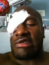 Get well soon, matey: Steelers linebacker James Harrison has a new look following eye surgery.